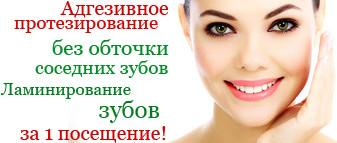 Протезирование без обточки соседних зубов в Рязани