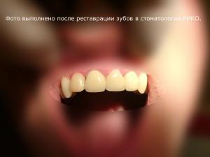полная реставрация в стоматологии рико