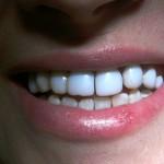 реставрация в стоматологии рико