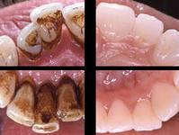 ультразвуковая чистка зубов фото до и после