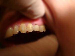 старый адгез стоматология рико