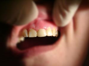 адгезивный протез 2 в стоматологии Рико Рязань