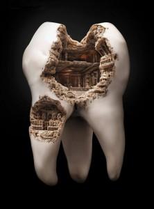 изображение колизея на кариозном зубе